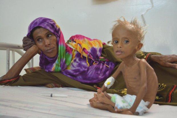 """La """"recuperación"""" de un niño desnutrido víctima de la crisis de Yemen"""