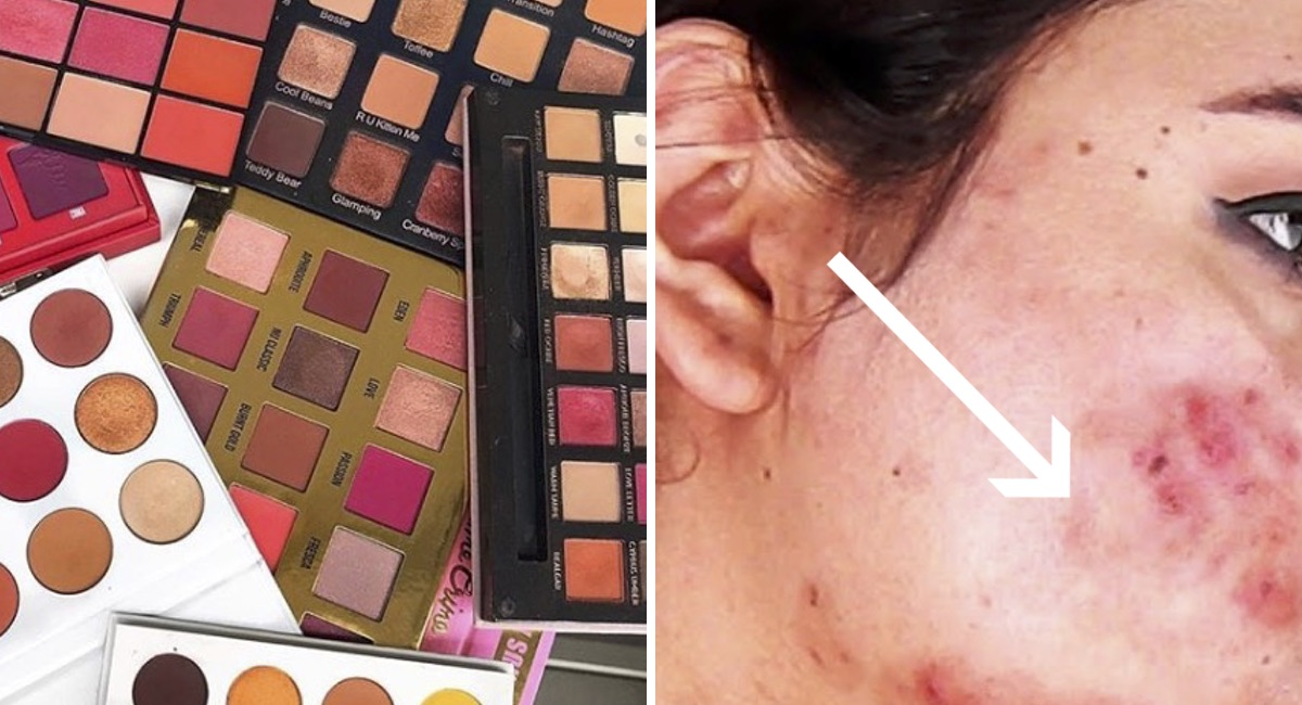 infecciones en la piel por maquillaje